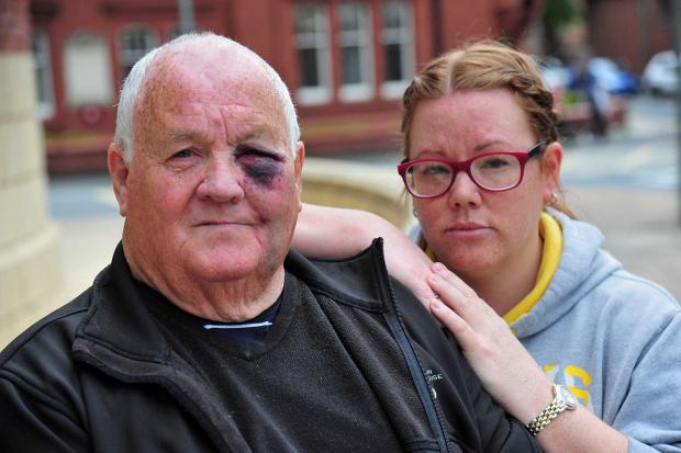 ATTACKED: Roy Tippin recovering after he was punched in the face, pictured with his daughter Claire Tippin