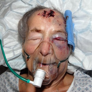 Police are to speak to 94-year-old Emma Winnall, who is recovering in hospital after being attacked in her home
